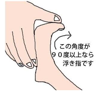 14.5.11浮き指3