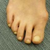 外反母趾とはどんな症状なの?