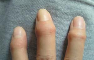 14.6.6ヘバーデン結節の指になったよ?