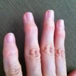 手の指関節にコブができて曲がらない